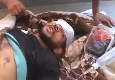 Segundo vídeo divulgado por ativistas na Síria, a imagem é de um dos feridos no massacre em Tremseh, na quinta-feira (12) (Foto: Shaam News Network, SNN/AP)